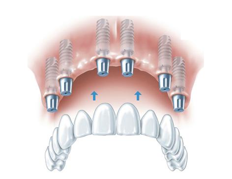 dr med dent thomas l ffler implantologie aschaffenburg implantate implantatcentrum. Black Bedroom Furniture Sets. Home Design Ideas